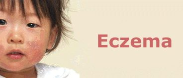 How Do You Treat Eczema At Home – 4 Home Treatments for Eczema